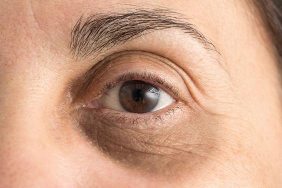 treatment for droopy eyelid kochi