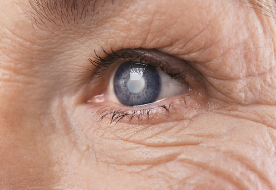 cataract treatment ernakulam